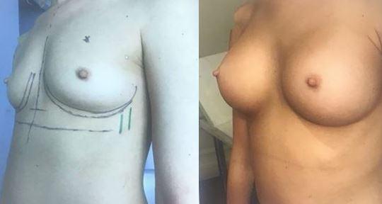 L'augmentation mammaire en  2020