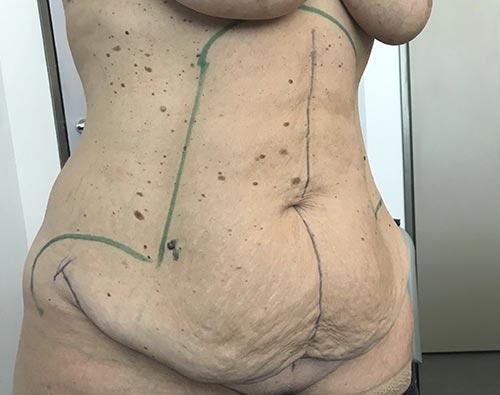Plastie abdominale avec lipoaspiration ventre et taille
