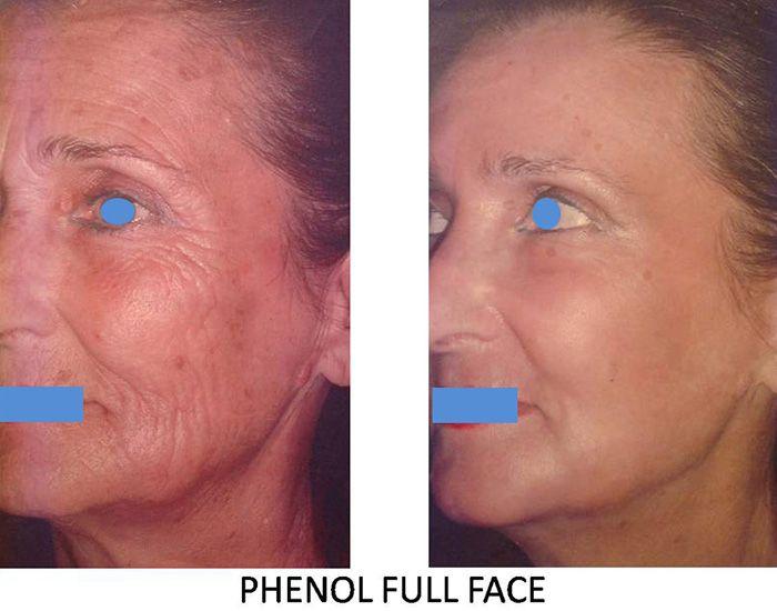 Résultats post-opératoires Peeling du visage : donnez un coup de jeune à votre visage!