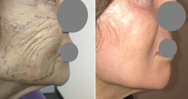 Résultats post-opératoires Peeling du visage