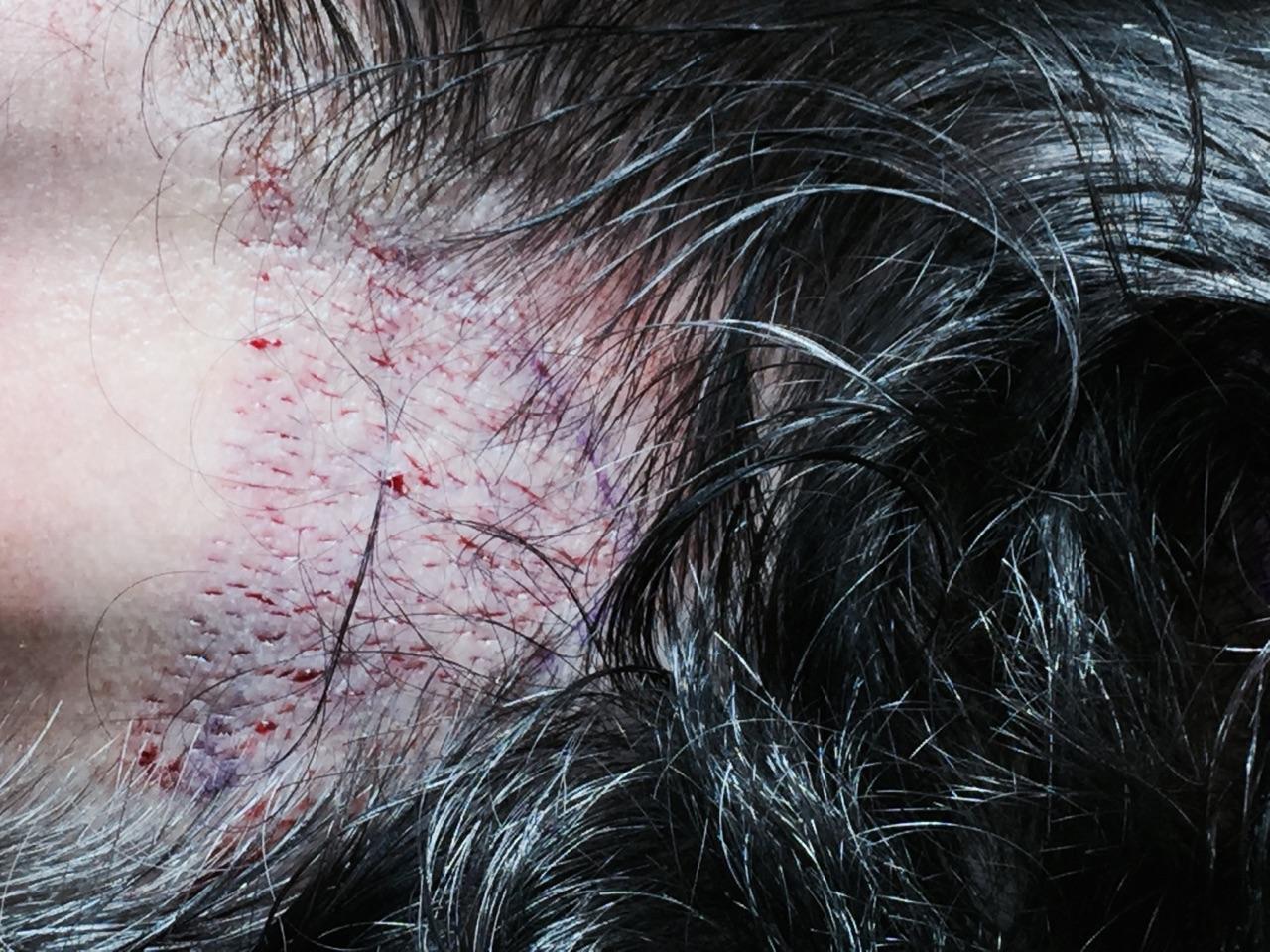 Résultats post-opératoires Greffe de cheveux, implant capillaire