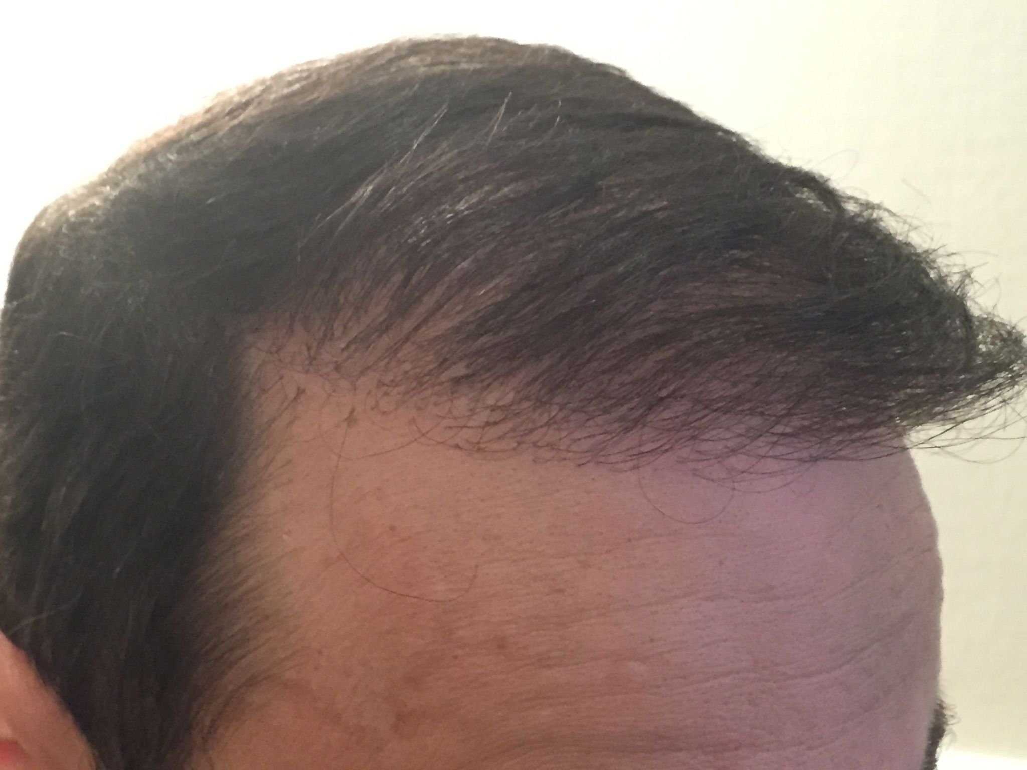 Résultats post-opératoires Microgreffe de cheveux contre la calvitie