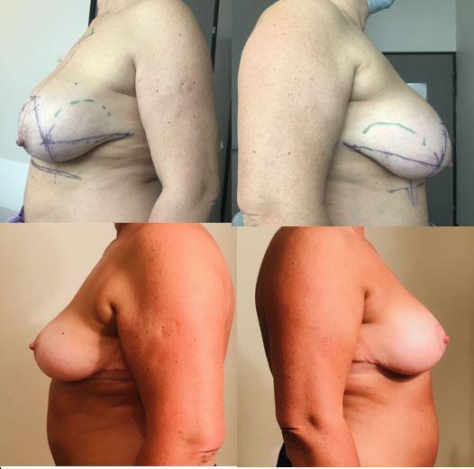 Résultats post-opératoires Plastie mammaire, Lifting des seins