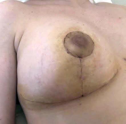 cicatrice plastie mammaire dr marinetti marseille