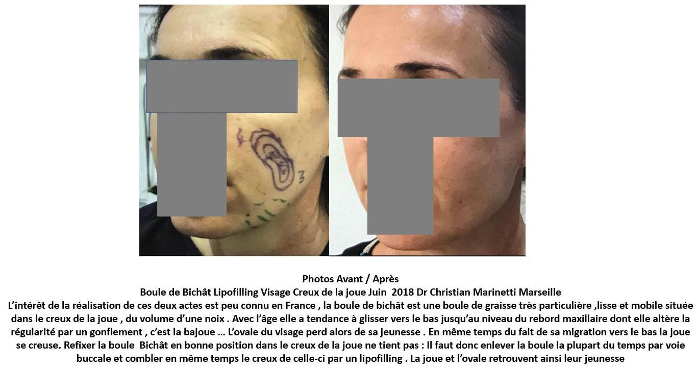 Résultats post-opératoires Lipofilling du visage