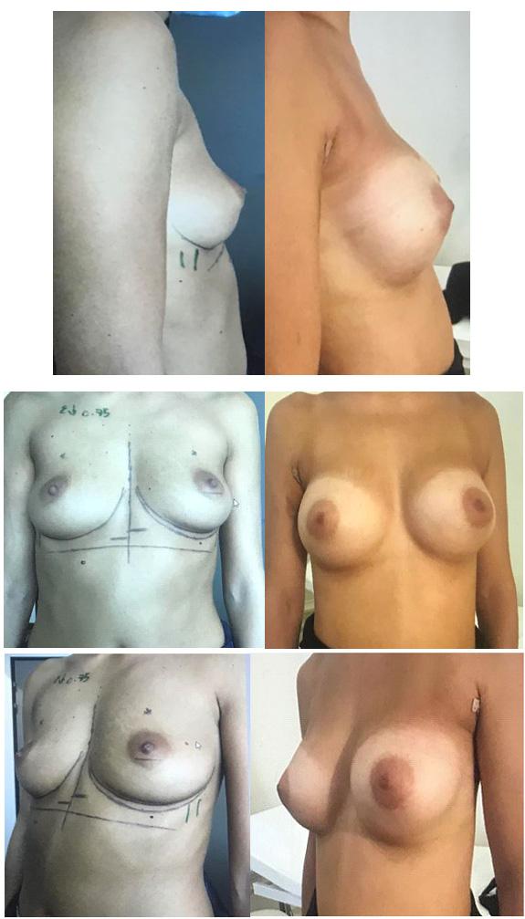 Résultats post-opératoires Implant et prothèse mammaire