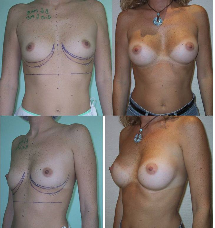 Résultats post-opératoires La voie axillaire pour une augmentation mammaire