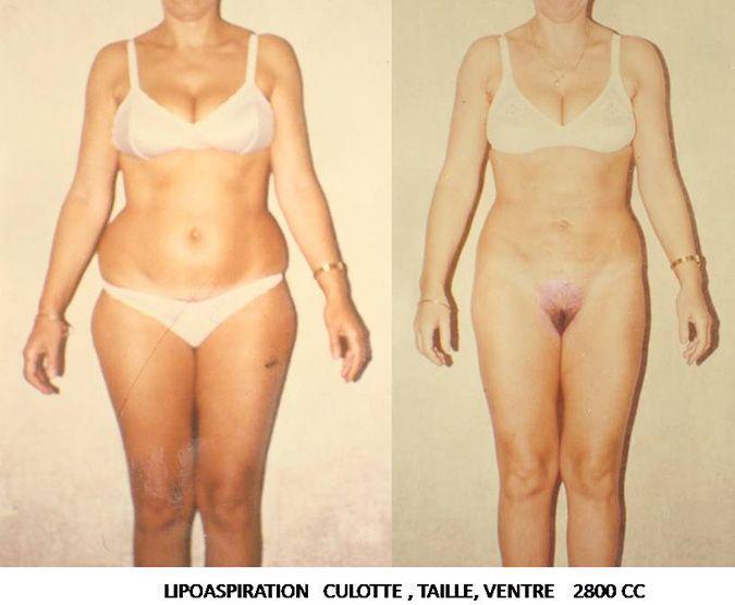 Résultats post-opératoires Liposuccion : ventre, cuisse, fesses