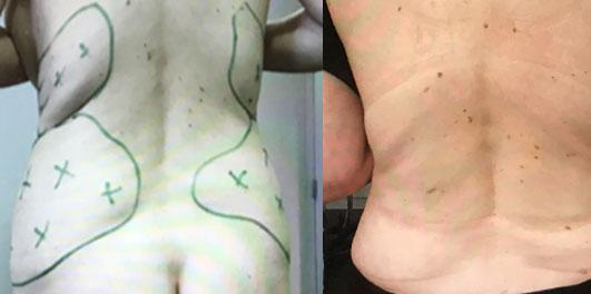 Résultats post-opératoires Liposuccion