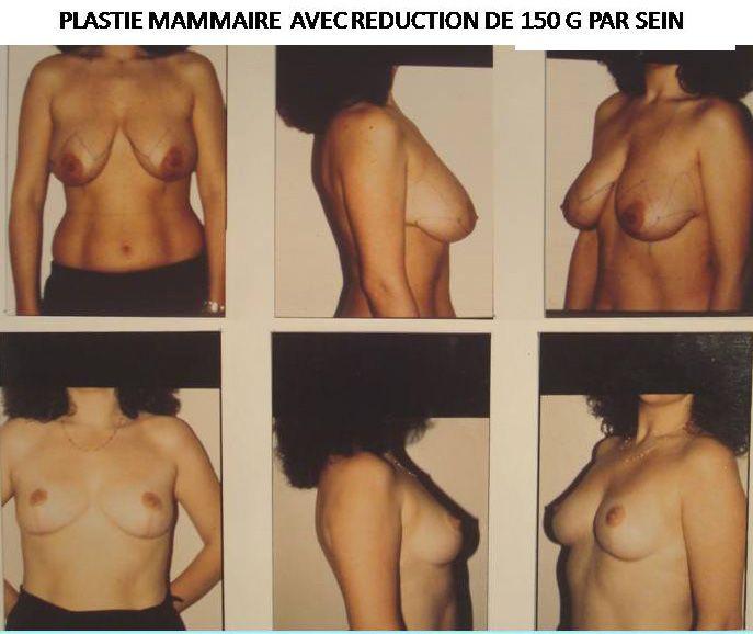 Résultats post-opératoires Chirurgie des seins