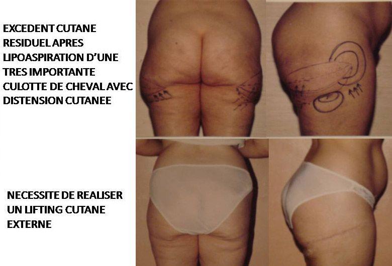 Résultats post-opératoires Chirurgie esthétique de la silhouette