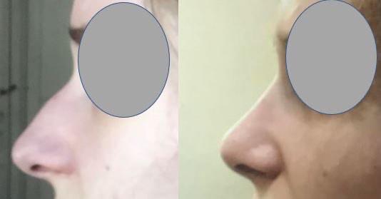 Résultats post-opératoires Rhinoplastie : chirurgie du nez