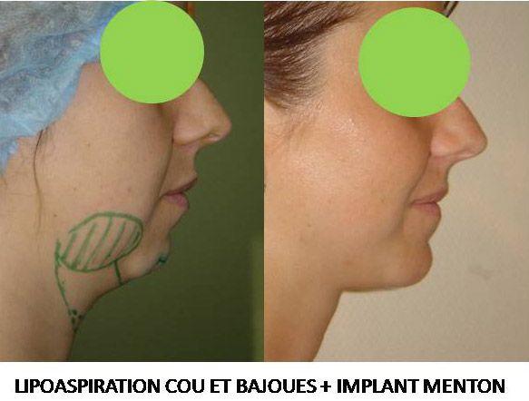 Résultats post-opératoires Génioplastie : chirurgie du menton