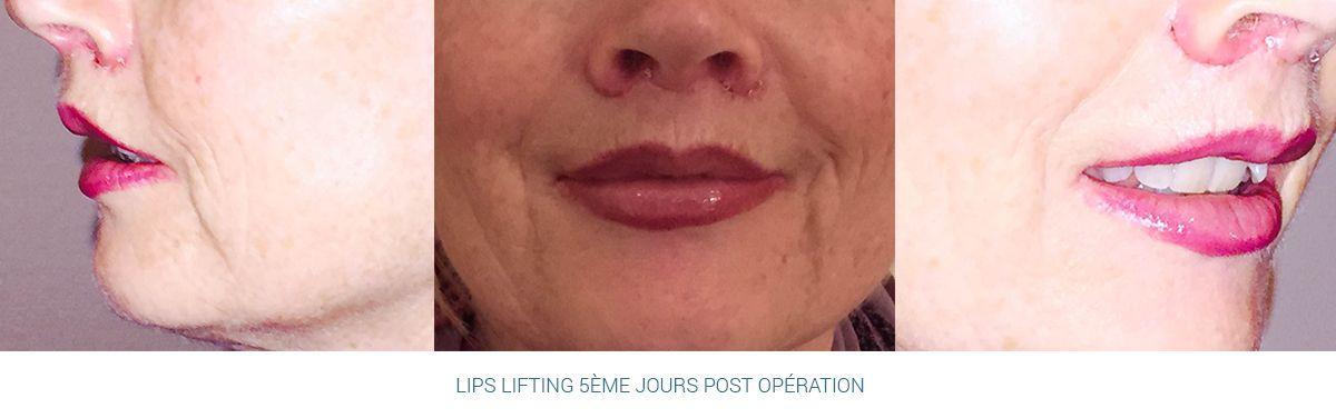 Résultats post-opératoires Lèvres - Bouche