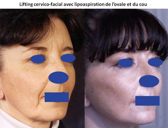 Résultats post-opératoires Visage