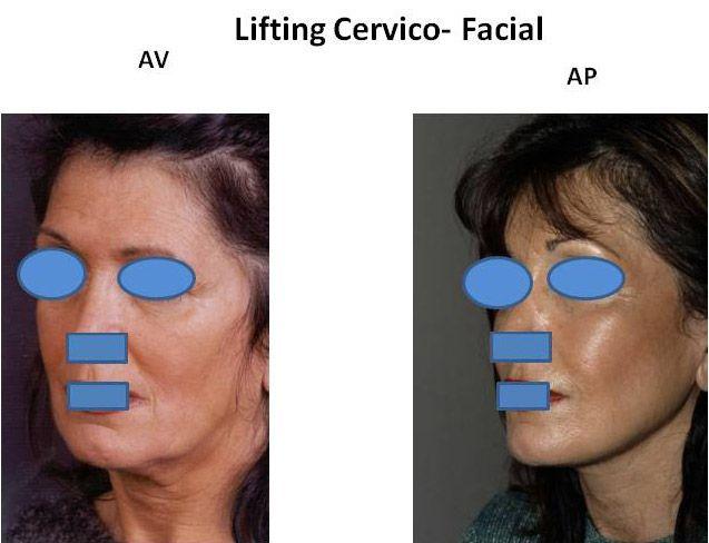Résultats post-opératoires Lifting du visage