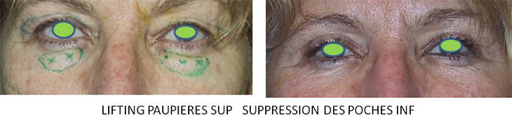Résultats post-opératoires Blépharoplastie (lifting des paupières)