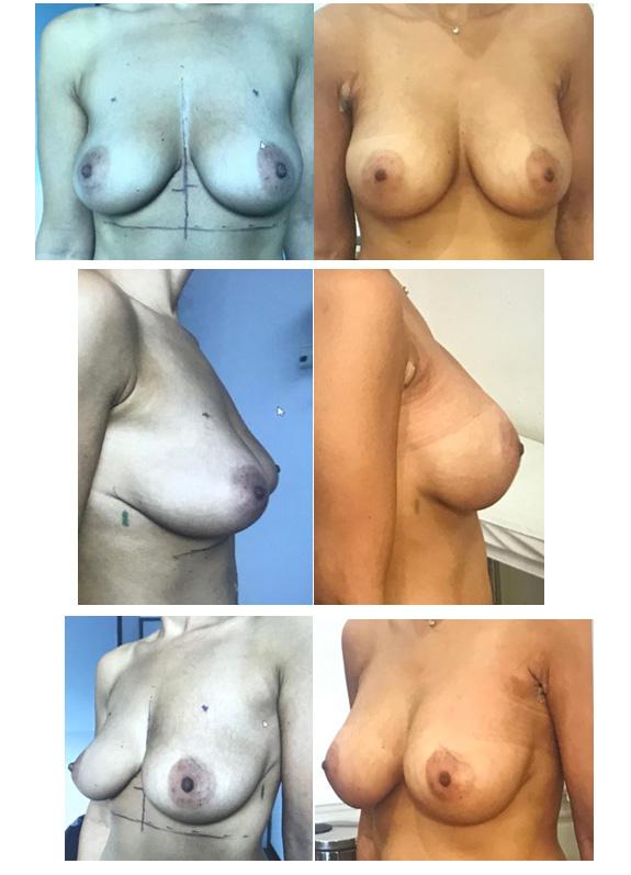 implants anatomiques par voie axillaire sans cicatrice sur les seins