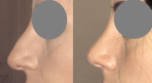 chirurgie esthetique du nez mars2021