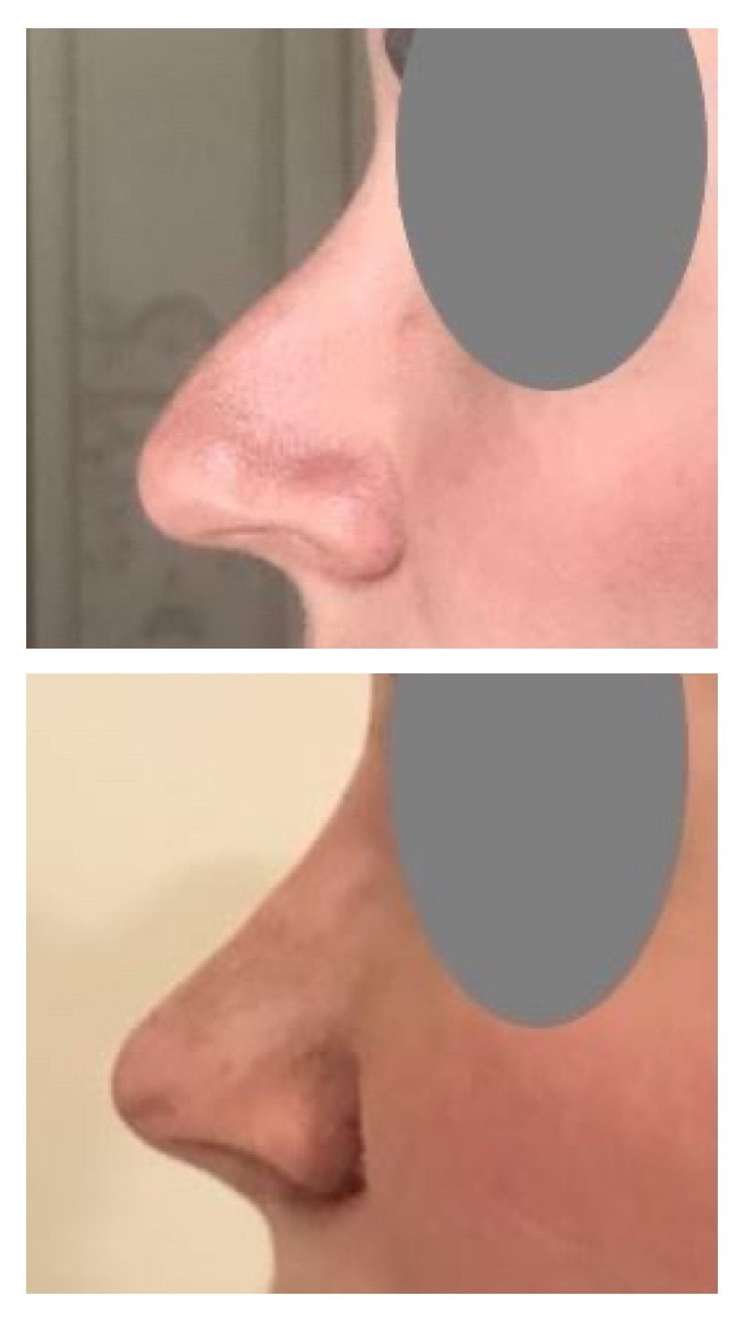chirurgie esthetique du nez mars 2021