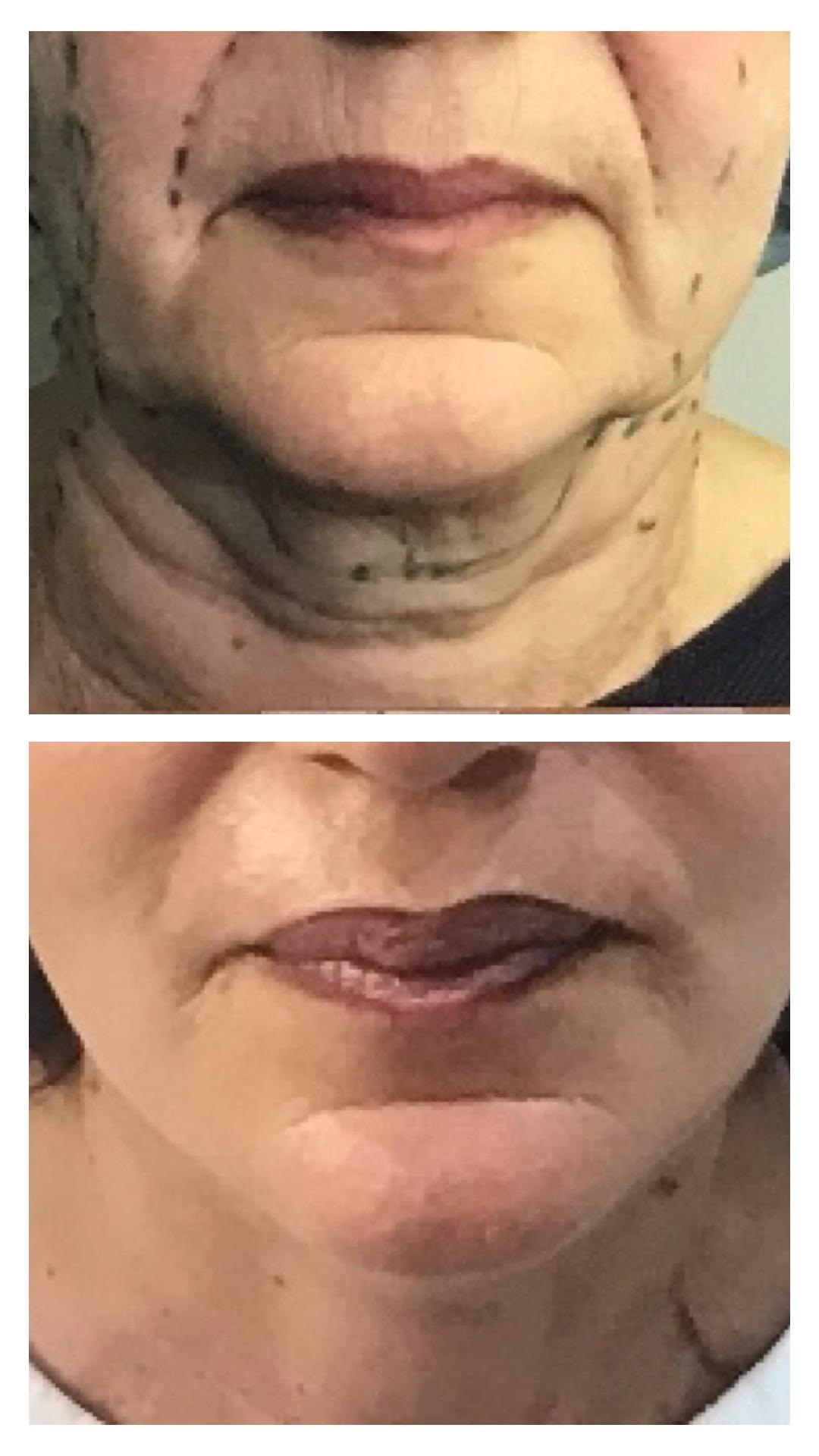 face lift cervico facial