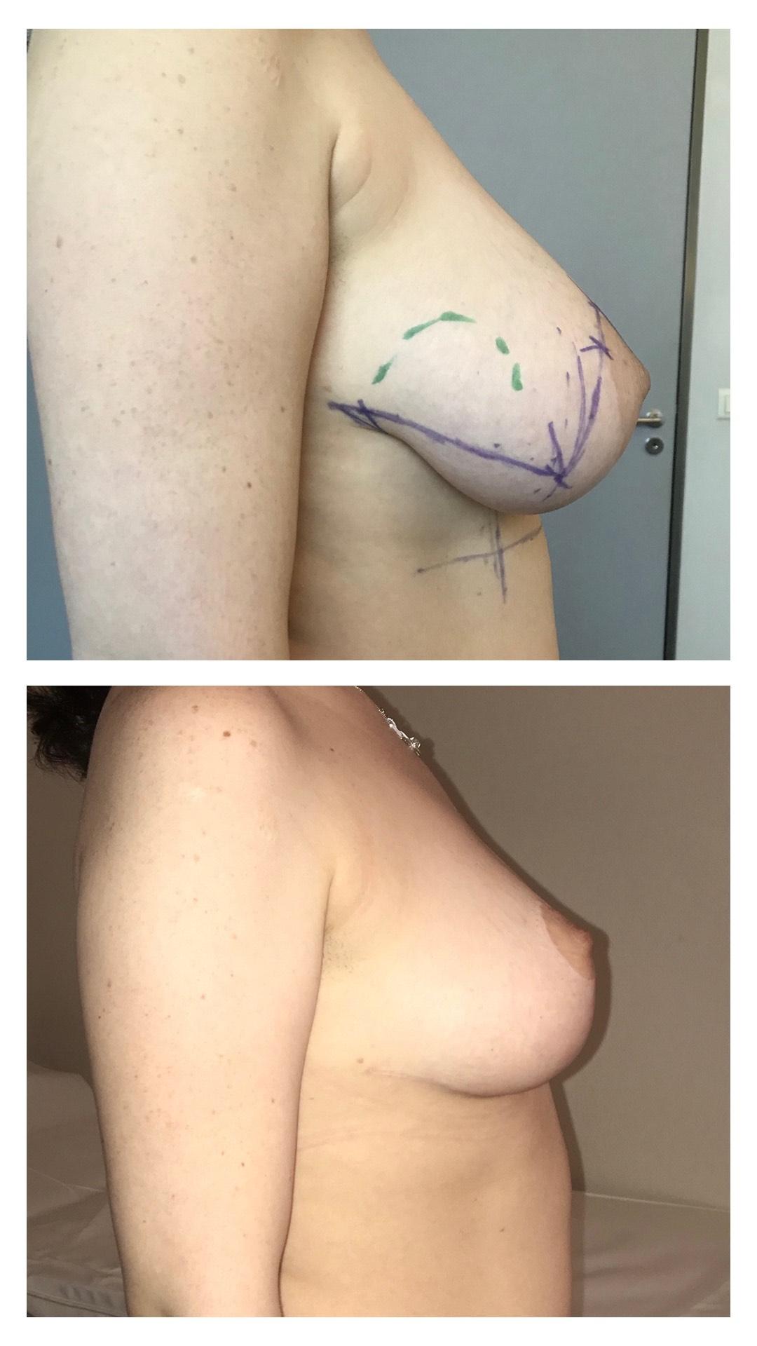 Hypertrophie mammaire  Plastie avec réduction