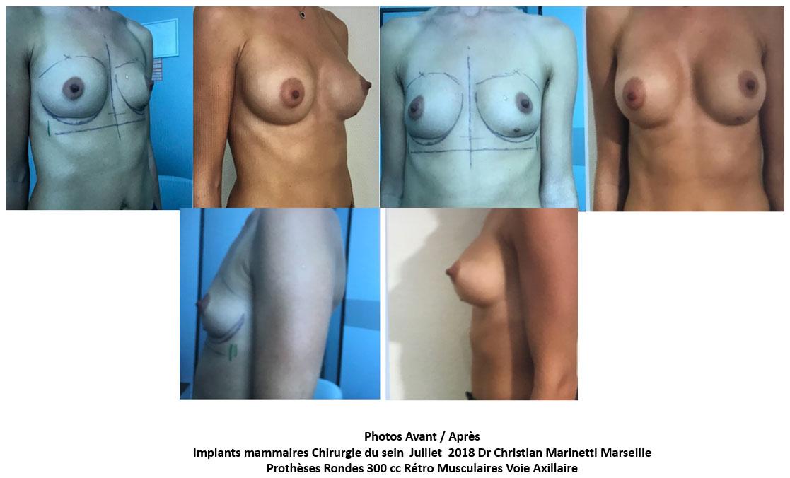 implants mammaires marseille docteur marinetti