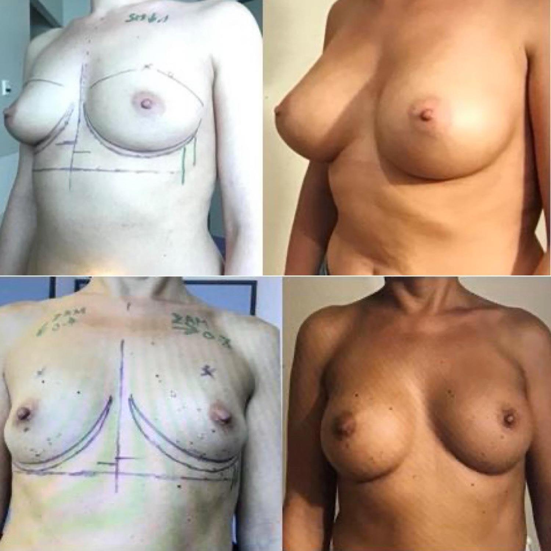 form naturelle implant mammaire