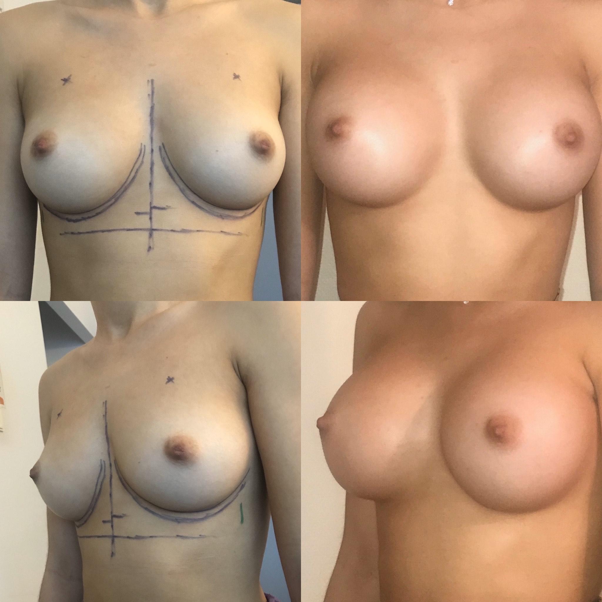 Implants pré musculaires sans cicatrice sur les seins par voie axillaire dr marinetti