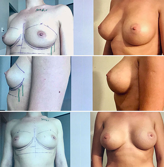 implants mammaires marseille anatomiques docteur marinetti