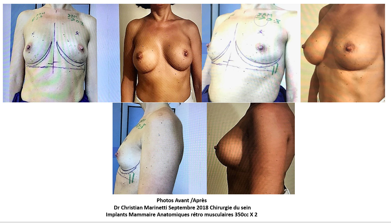 implants mammaires marseille anatomiques 350cc docteur marinetti