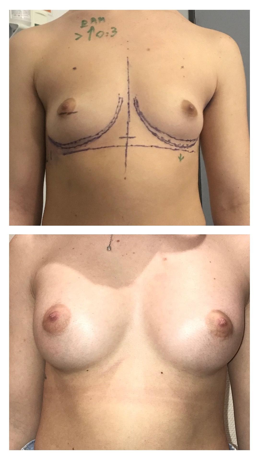 Implants mammaires anatomiques par voie axillaire rétro musculaire sans cicatrice sur les seins