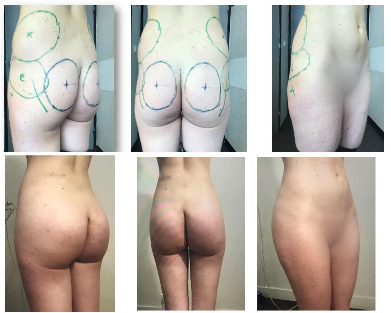 Correction des courbes et des volumes par association de lipoaspiration, lipofilling et implants fessiers