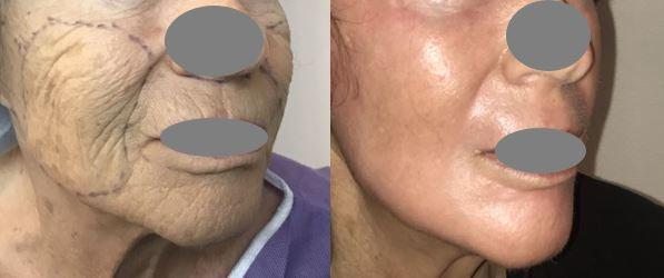 Traitement des rides du visage par peeling profond au phénol dr marinetti