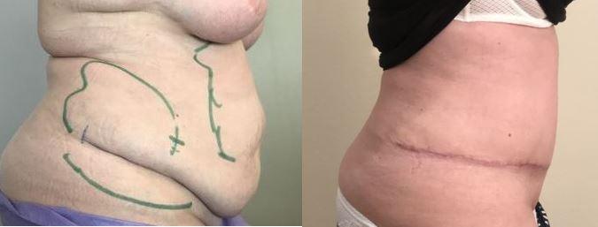 Plastie abdominale avec lipoaspiration au premier mois post opératoire dr marinetti avril 2021