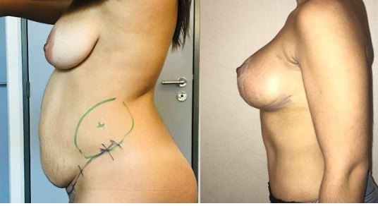 Plastie abdominale et plastie mammaire 2 mois après l�'intervention dr marinetti avril 2021