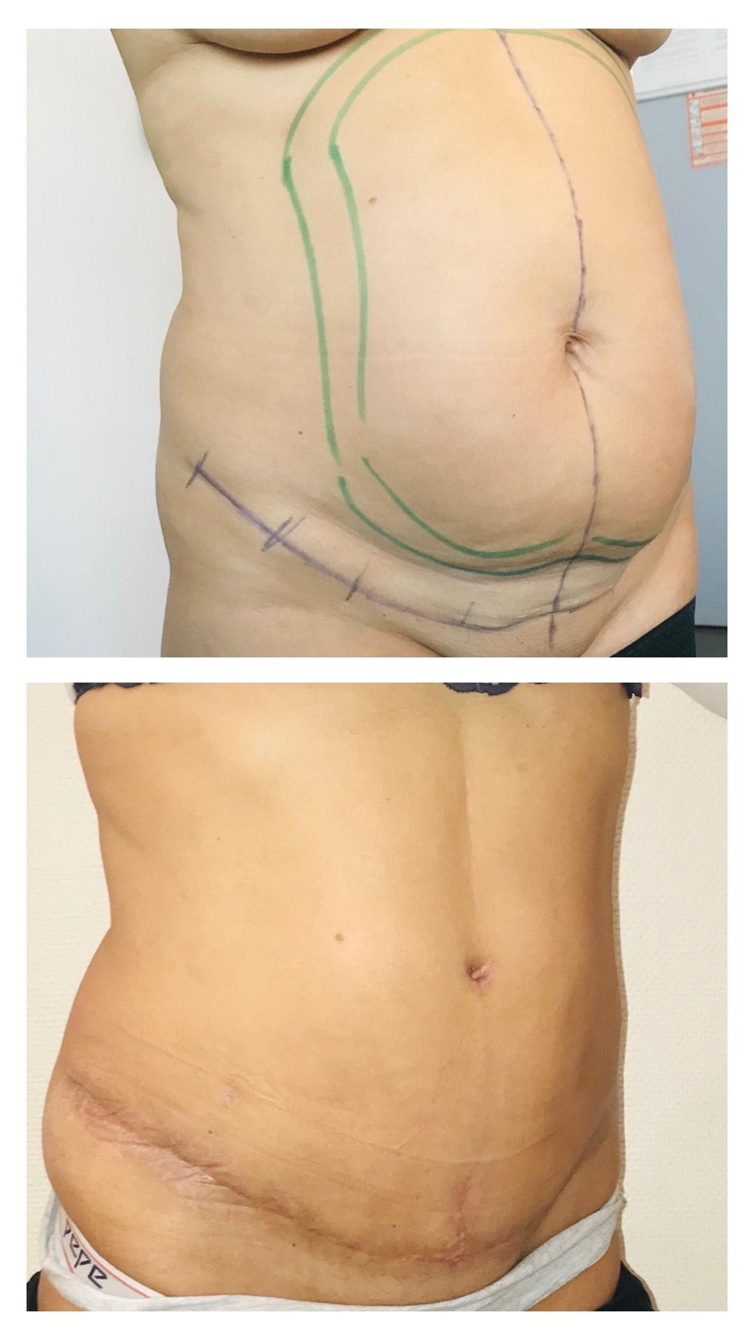 Plastie abdominale avec lipoaspiration à trois semaines post opératoires