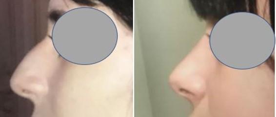 rhinoplastie marseille du Dr Marinetti : photos avant apres