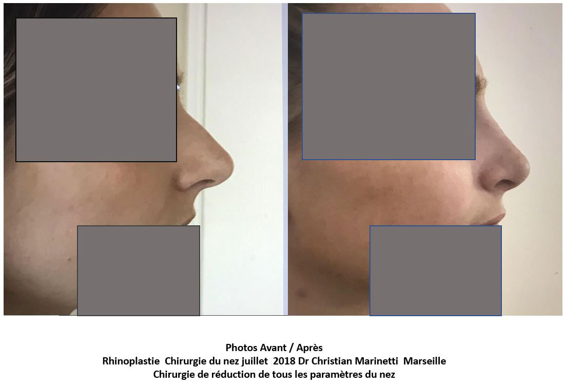 rhinoplastie marseille du docteur marinetti