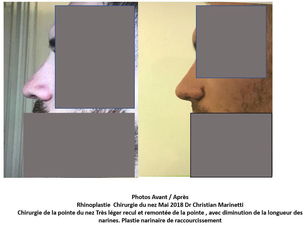 chirurgie pointe du nez marseille du docteur marinetti