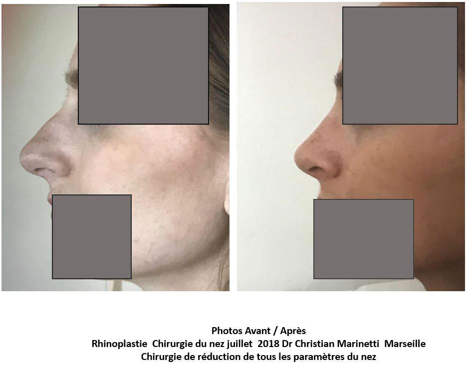 rhinoplastie marseille docteur marinetti