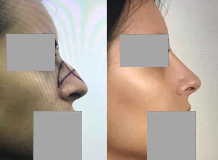 rhinoplastie reduction bosse nasale Chirurgie du nez dr marinetti