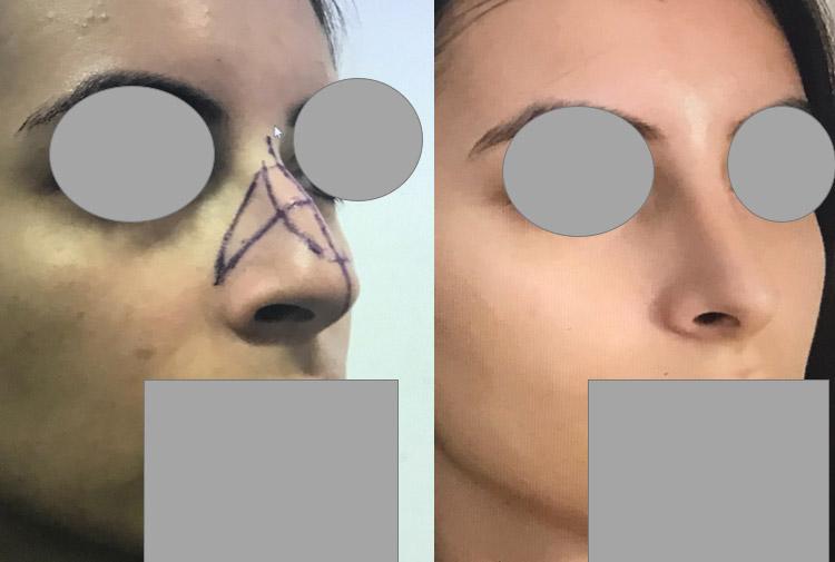 rhinoplastie reduction de toutes les dimensions du nez Chirurgie du nez dr marinetti