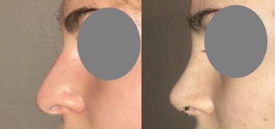Rhinoplastie fermée pour réduction du nez à 10 jours à l?ablation du plâtre dr marinetti avril 2021