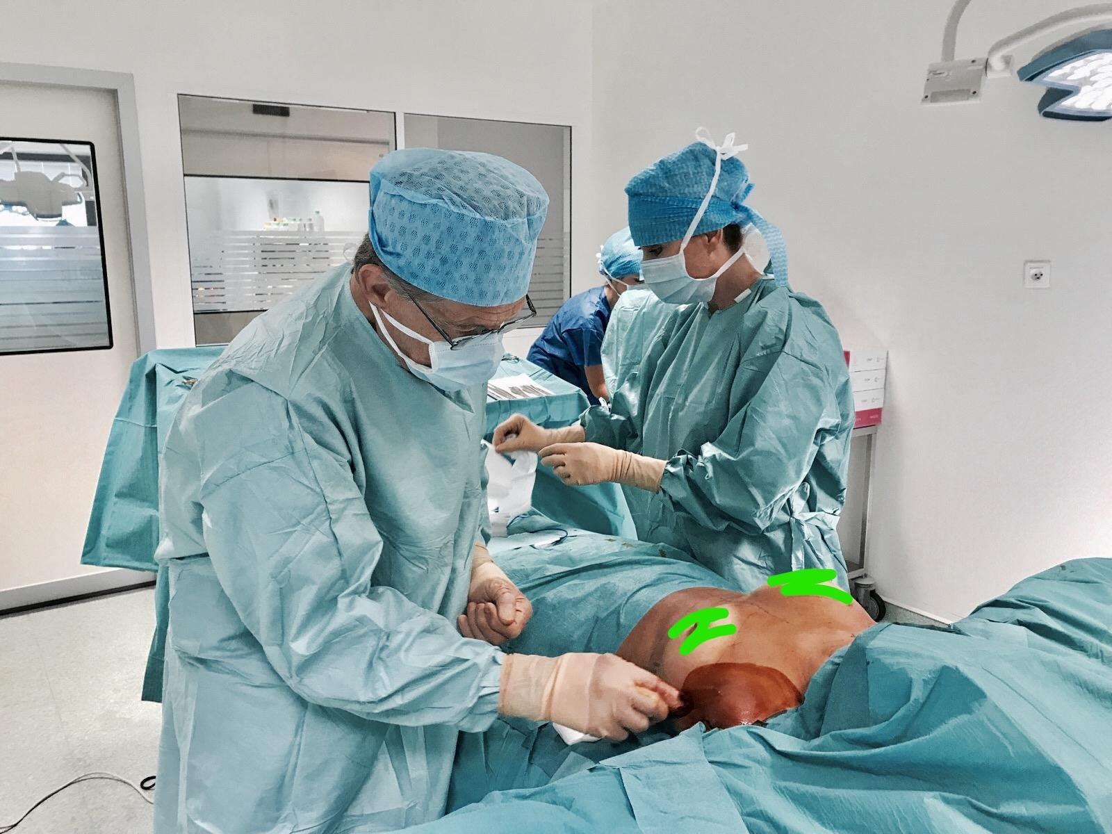 implant mammaire par voie axillaire